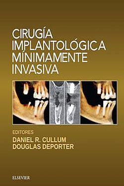 Cirugía Implantológica Mínimamente Invasiva