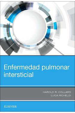 Emfermedad Pulmonar Intersticial