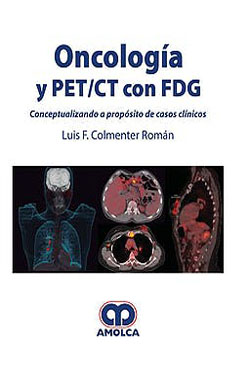 Oncología y PET/CT con FDG