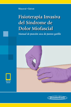 Fisioterapia Invasiva del Síndrome de Dolor Miofascial + Ebook