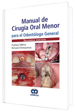 Manual de Cirugía Oral Menor para el Odóntologo General